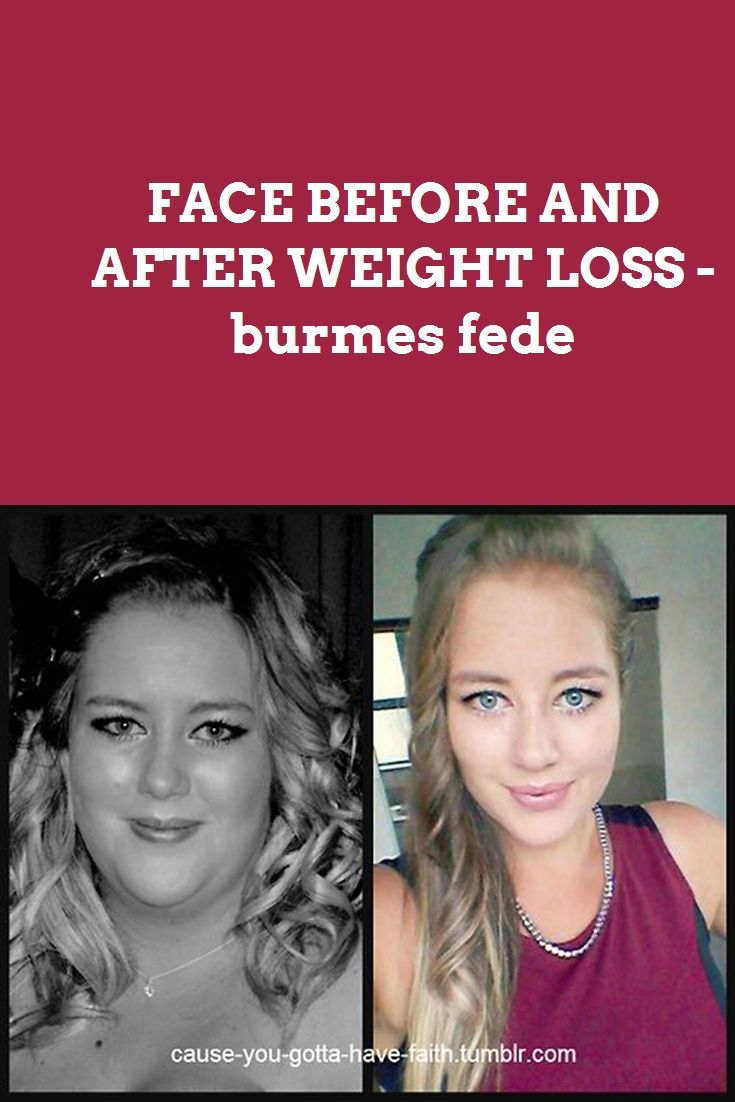 RAW FOOD WEIGHT LOSS BEFORE AND AFTER - burmes fede