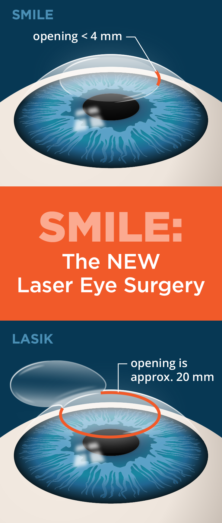 A New Laser Eye Surgery With A Fun Name Lasik Laser Eye Surgery Cost Lasik Surgery
