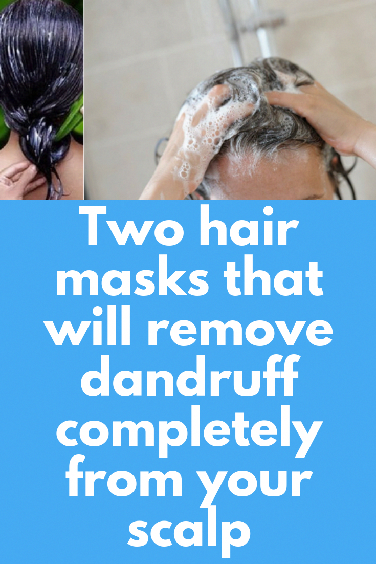 Two hair masks that will remove dandruff completely from