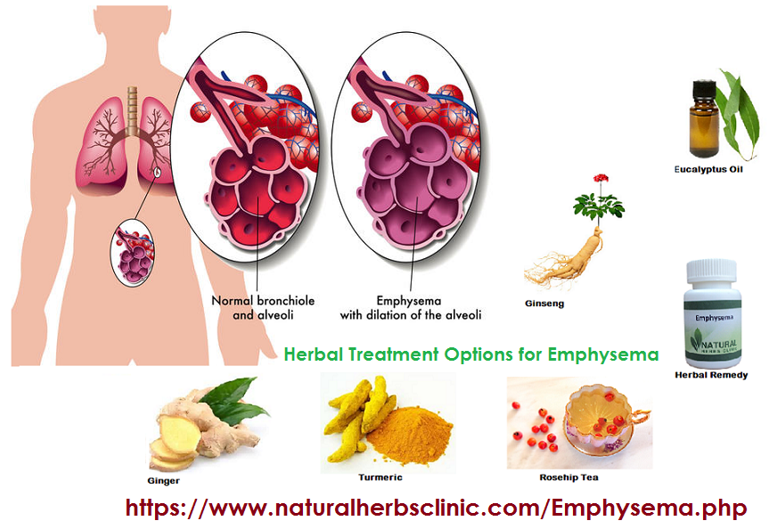 EMPHYSEMA NATURAL AND HERBAL TREATMENT