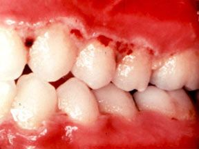 Acute Necrotizing Ulcerative Gingivitis - Trench Mouth Pinned by ...