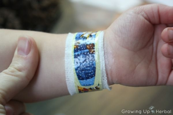 How I Healed My Toddler's Second Degree Burn With Herbs   GrowingUpHerbal.com   Here's how I treated a 2nd degree burn at home and what I used to heal it.