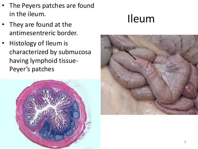 Ileum The Peyers Patches Are Found In The Ileum They Are Found