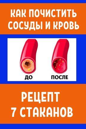 babushkina rețete despre varicoză ce unguente pentru tratamentul varicozei