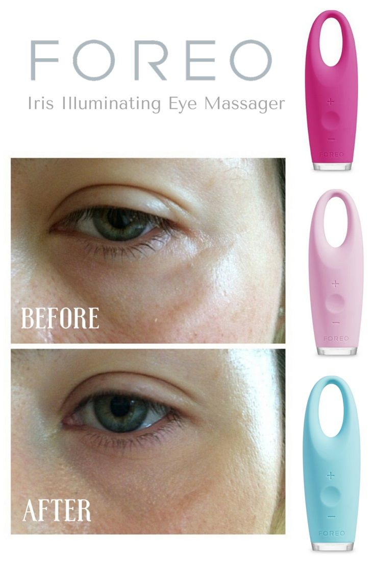 Foreo Iris Review Before And After Photo Read How This