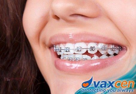 Ensogo Philippines Best Orthodontics By Vaxcen Kesehatan