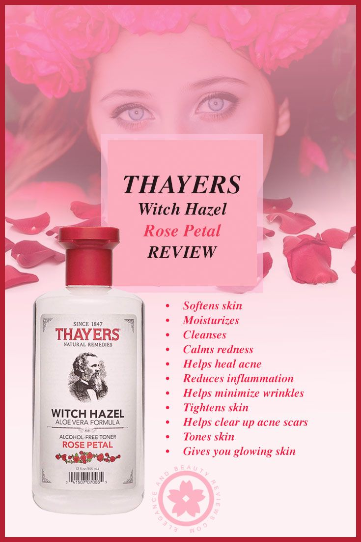 Thayers Rose Petal Witch Hazel Toner Review Five Stars Thayers Witch Hazel Witch Hazel Toner Skin Care Remedies Acne