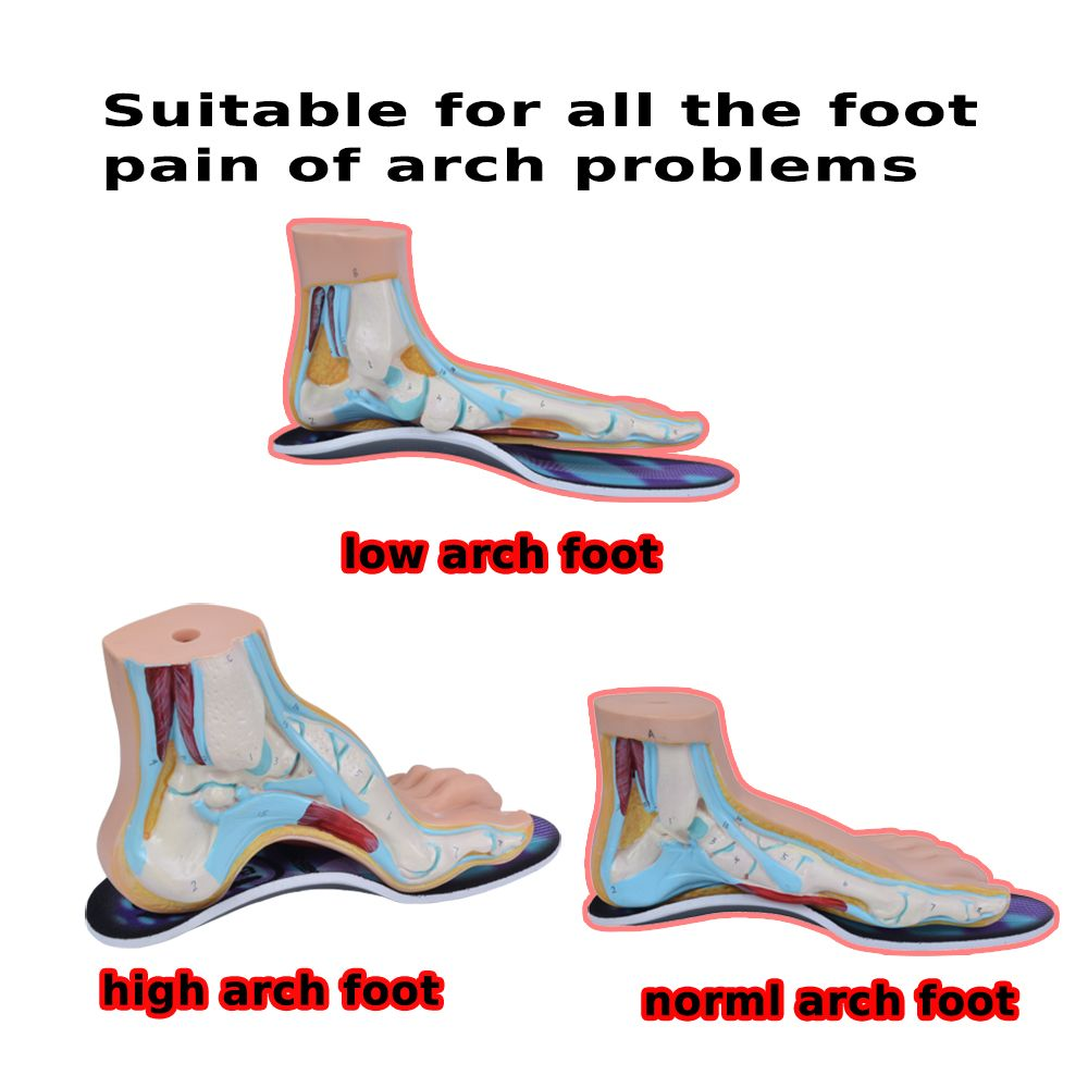 3D Orthotic Flat Feet Foot High Arch Gel Heel Support Shoe Inserts Insole Pad