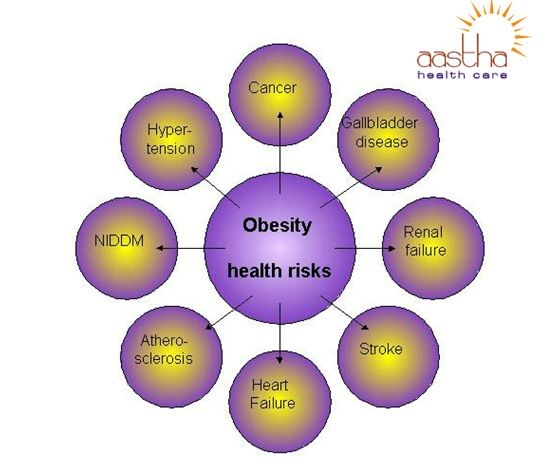 Mcdonalds Obesity And Health Issues