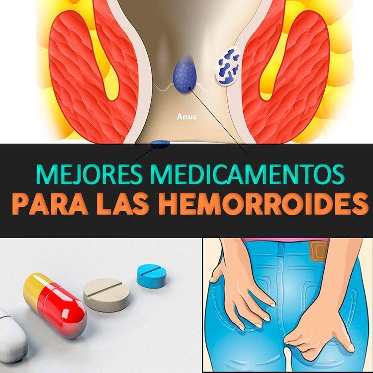 medicamento efectivo para desinflamar hemorroides