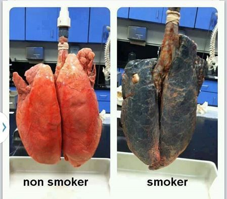 Now if this picture doesn't make u wanna throw your cigarettes out of the Window, I don't know what will!!!