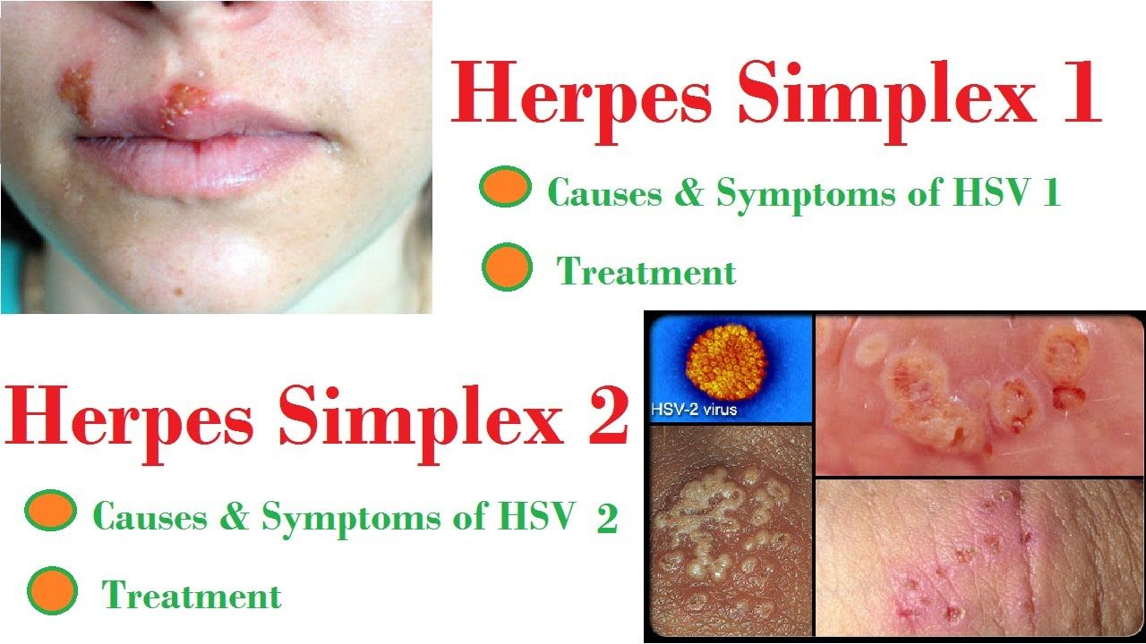 hsv sexually transmitted