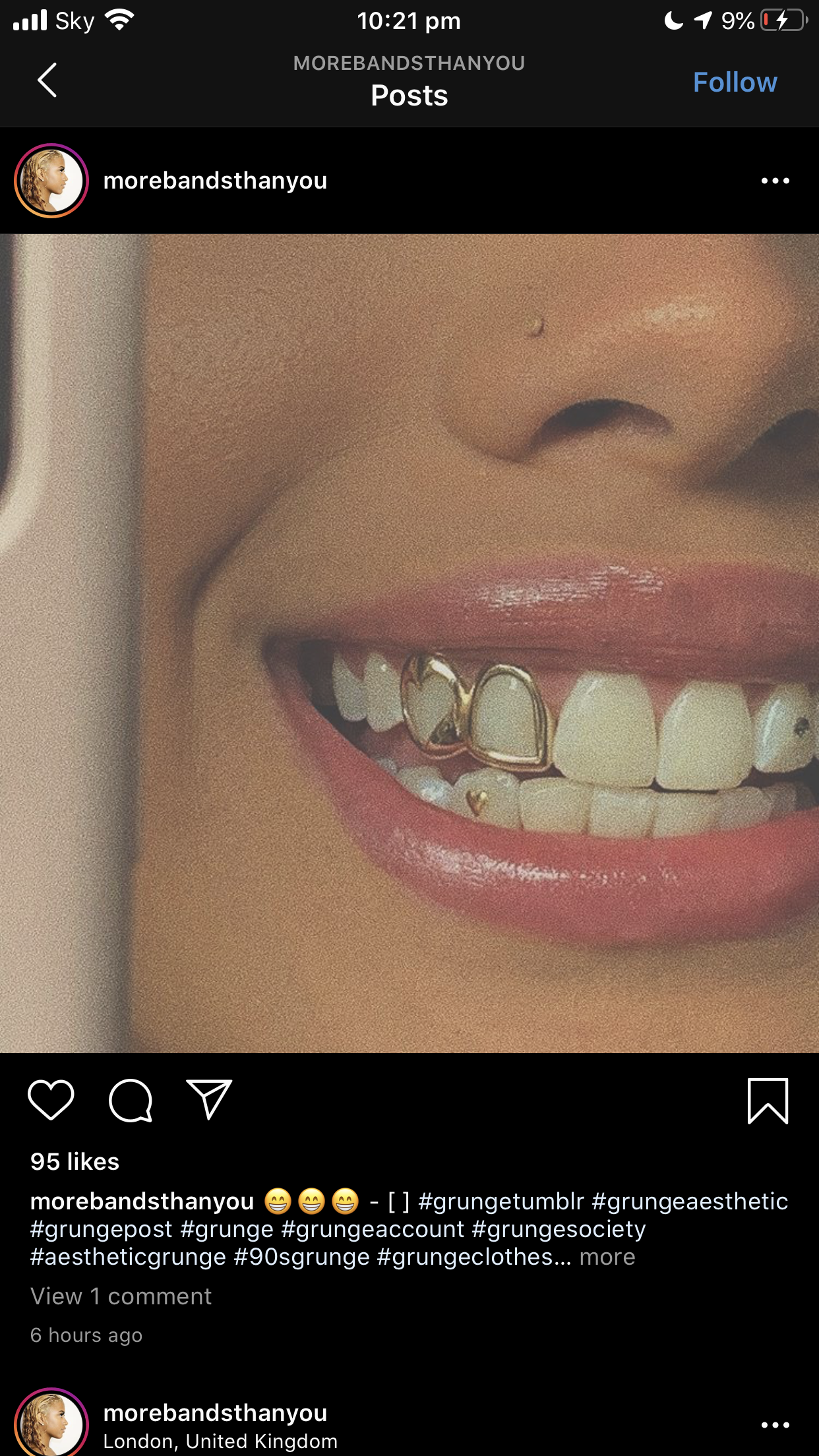 Pin By Ama Harley On Grillzntoothgems In 2020 Gold Teeth Teeth Jewelry Grillz