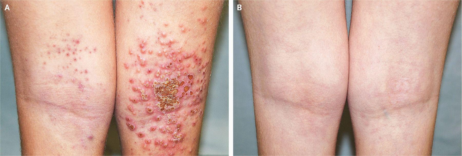 Eczema Herpeticum An 8yearold girl with atopic