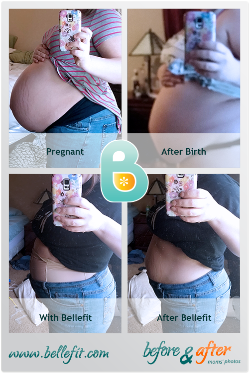Childbirth Recovery C Section Support With Bellefit Postpartum
