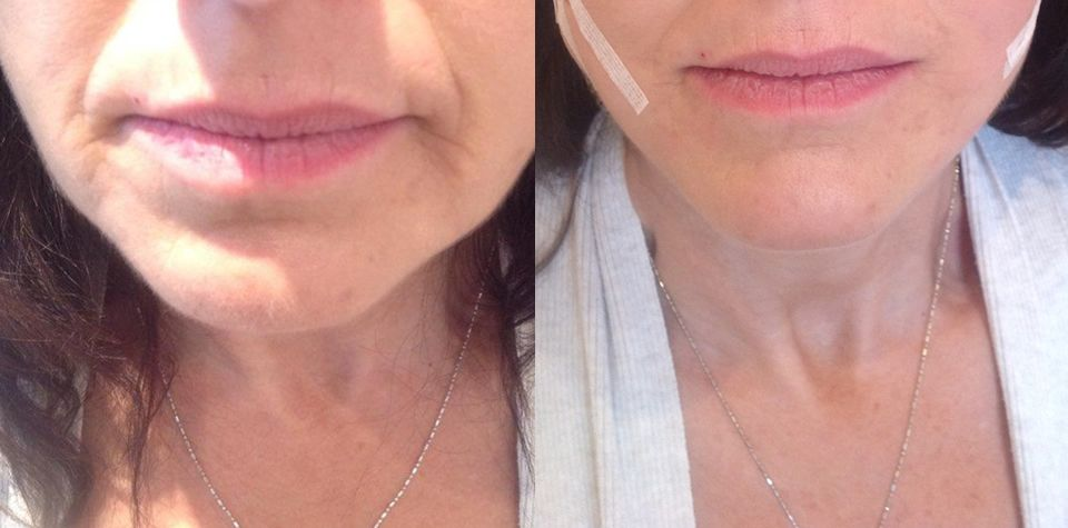 Before and after 4 point lift using PDO threads | PDO