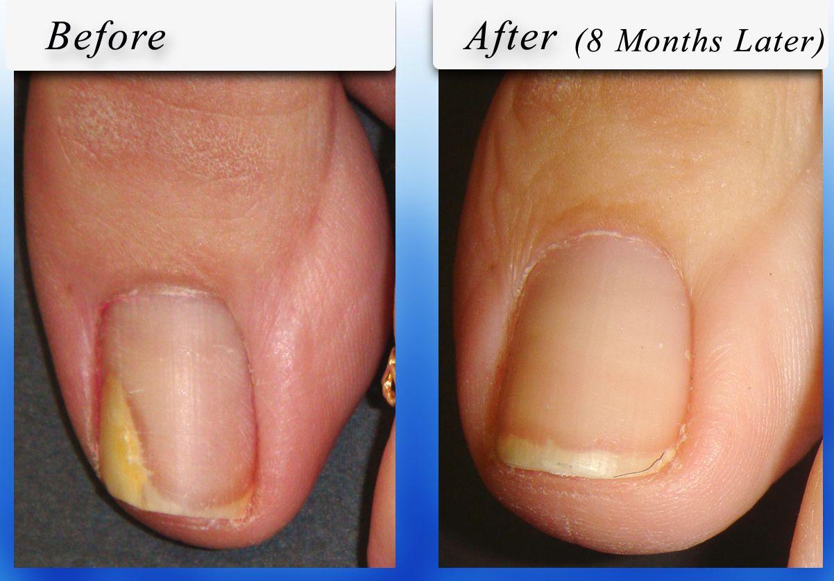 Best Product for nail fungus http://nailfungushelper.net/ | Natural ...