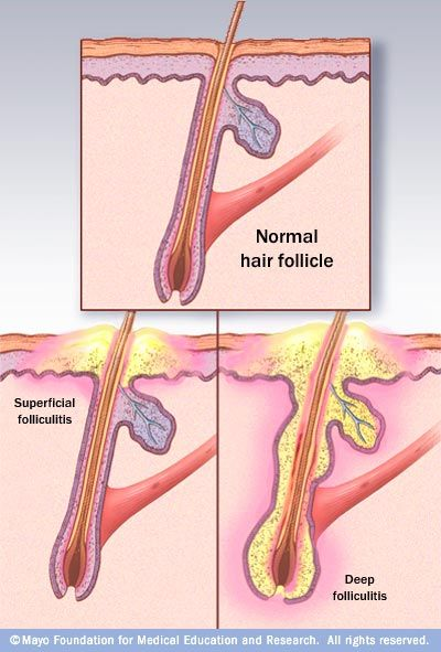 Folliculitis a skin condition in which hair follicles become ...
