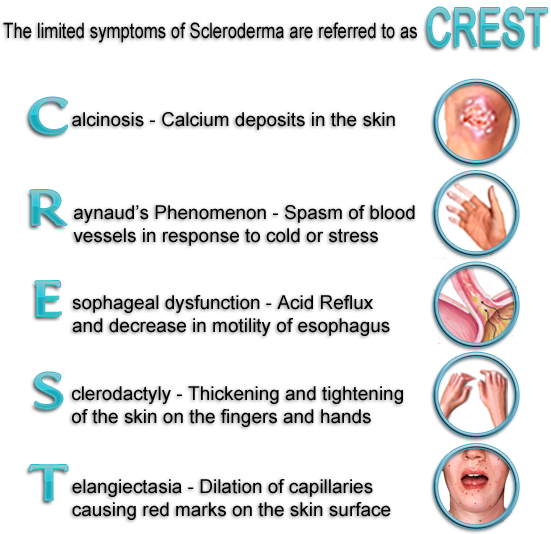 Crest Syndrome Scleroderma 에 있는 핀