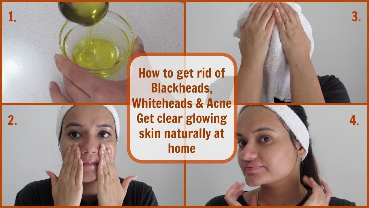Get rid of Blackheads, Whiteheads & Acne | Oil Cleansing