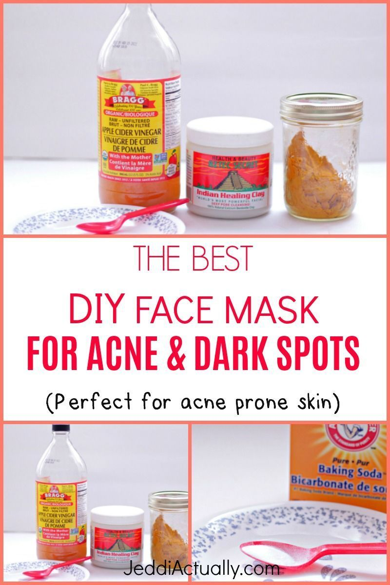 Wondering How To Get Rid Of Skin Discolorations And Get Clear Skin I Put Together This Gentle Chemical Acne Dark Spots Best Diy Face Mask Brown Spots On Face