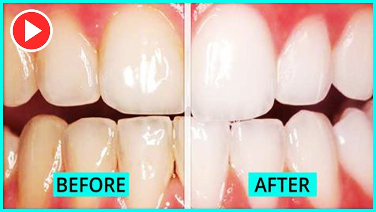 How To Get Your Teeth Whiter In 5 Minutes Without Baking Soda - Smile Makeover