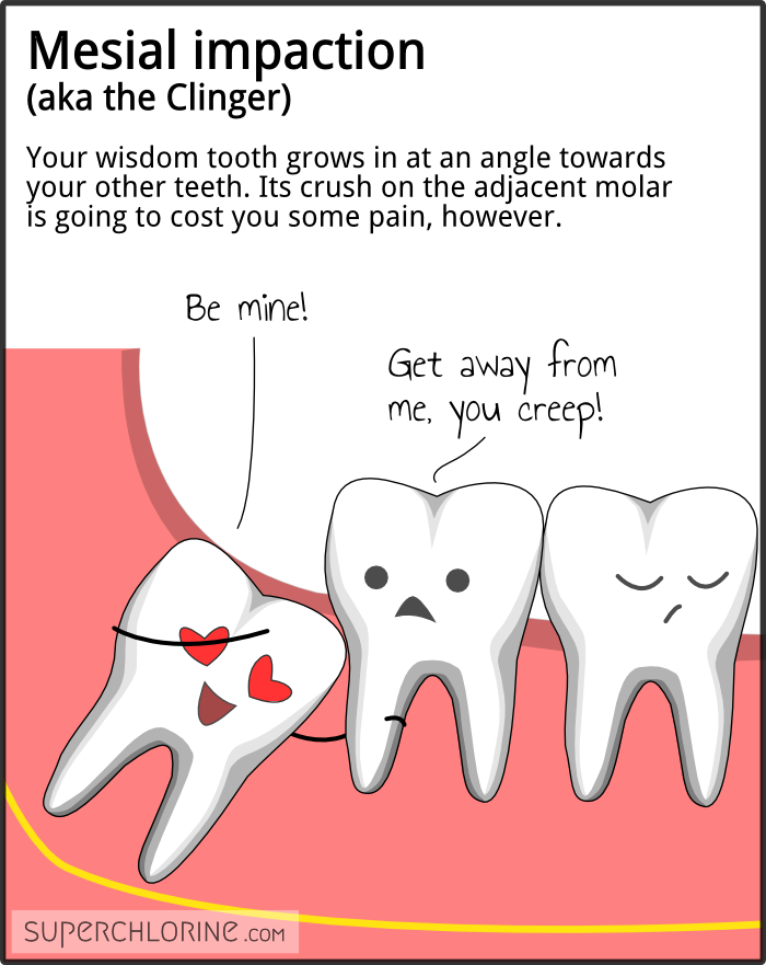 bahahaha this is a great site (wisdom teeth personalities