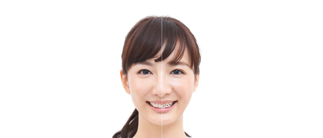 Differences between Invisalign aligners and braces