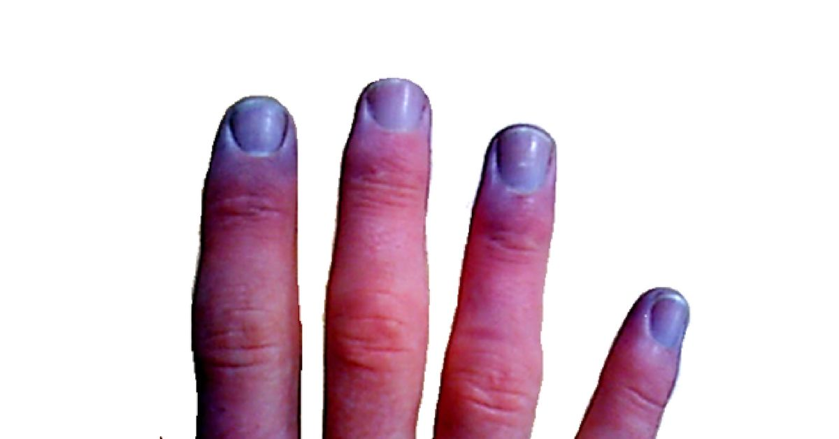 Cyanosis Is A Disease Condition Which Is Identified By The Bluish Discoloration Of The Hands And Toes Nail Beds And M Skin Discoloration Pure Products Disease