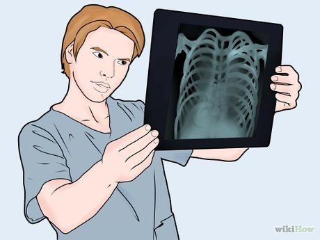 Read a Chest X Ray Step 2.jpg