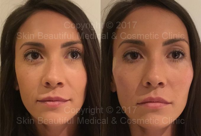 PDO thread lift by global expert Helen Bowes - cheek lift and V-lift