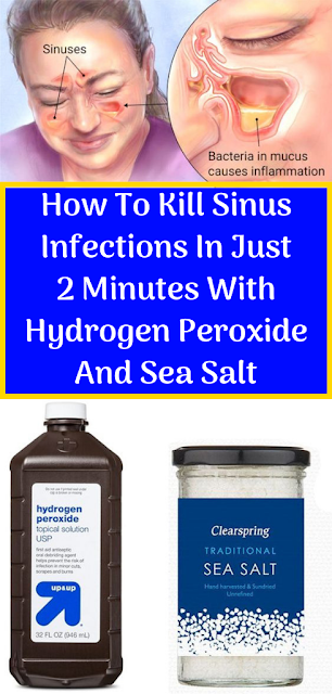 How To Kill Sinus Infections In Just 2 Minutes With Hydrogen