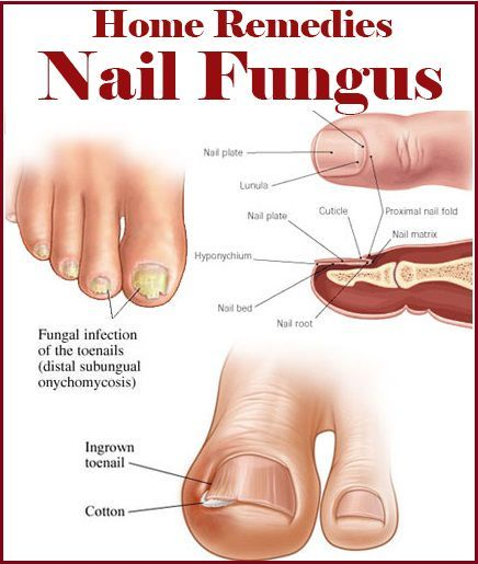 Home Remedies for Nail Fungus | Natural Remedies and Healthy ...