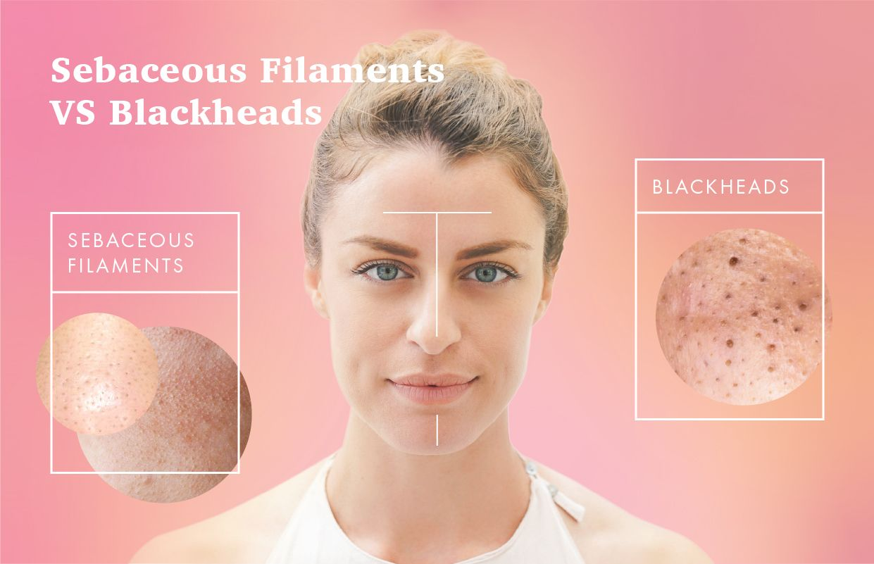 2f38b573cfd0ae22ec448d75c6498540 - How To Get Rid Of Black Dots On Your Nose
