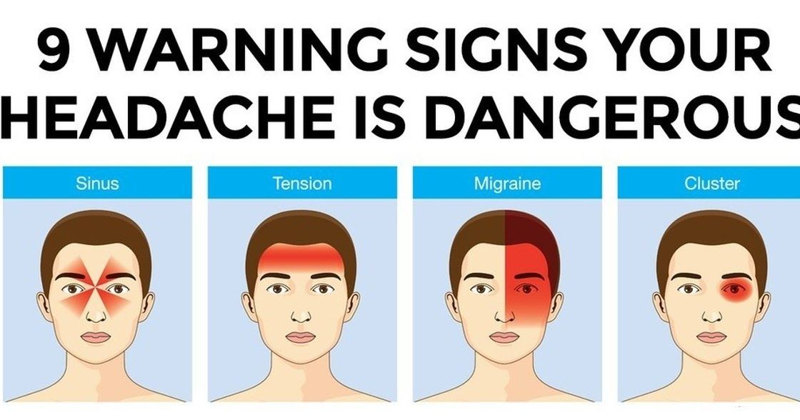 9 Warning Signs Your Headache Is Dangerous   Headache ...