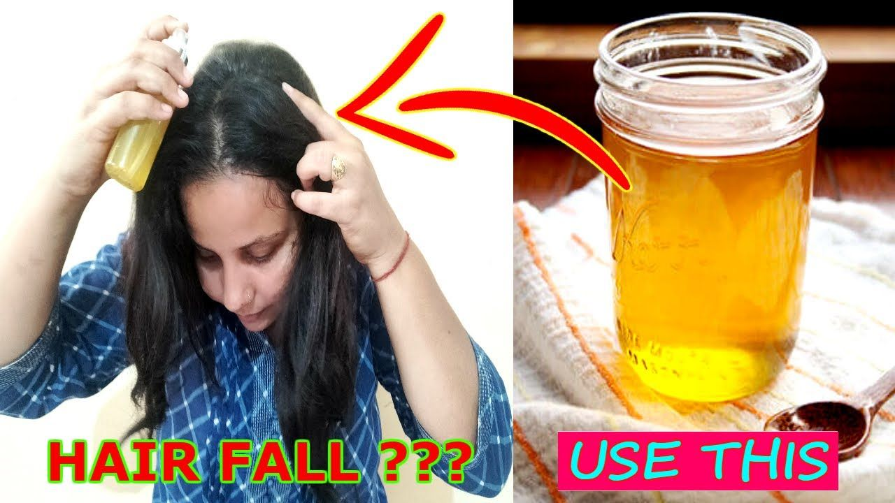 How to Stop Hair Fall Naturally - Easy & Effective Home ...