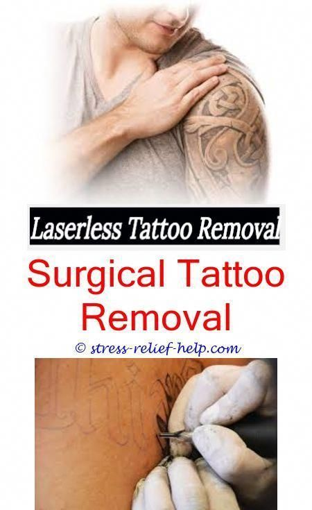 Eyebrow Tattoo Removal, #eyebrow #Removal #Tattoo,How Much