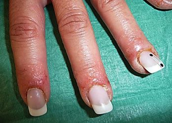 New Article In Thai And English About Allergies Must Read Sculptured Acrylic Nails Gel Nails Nails