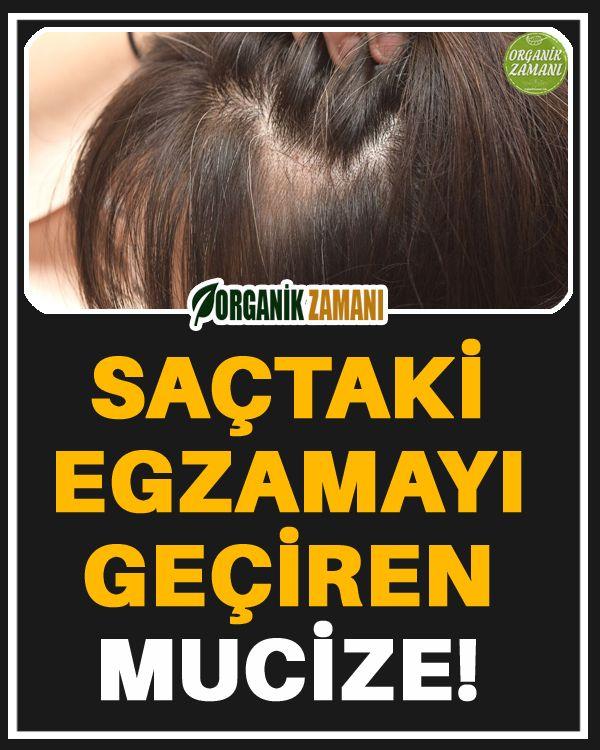 Sactaki Egzamayi Geciren Mucize 2020 Dogal Sac Bakimi