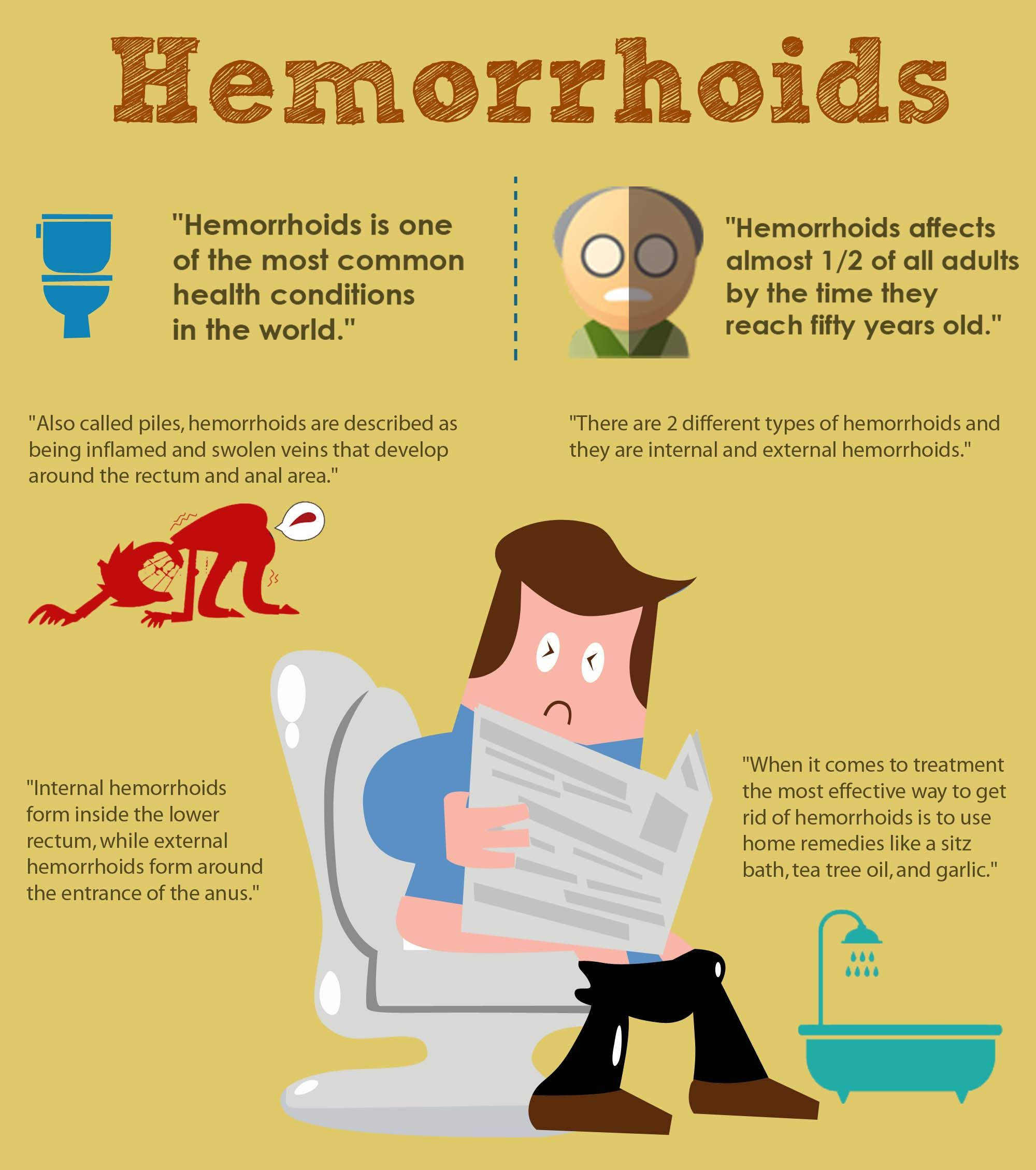 What Are Hemorrhoids? | Culture of Life | Getting rid of ...