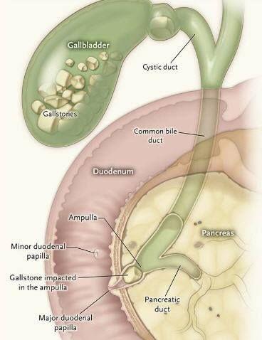 acute gallstone pancreatitis