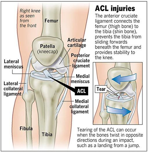 What is #AnteriorCruciateLigament or #ACL. Other information in this ...
