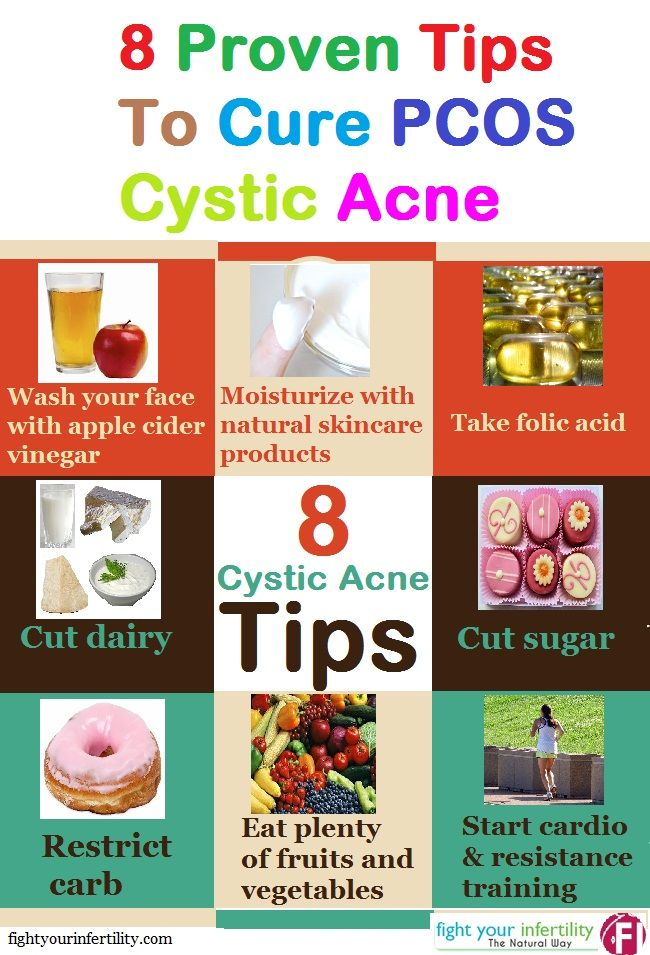 PCOS Cystic Acne Cure – Get Clear Skin with Home Remedies | PCOS ...