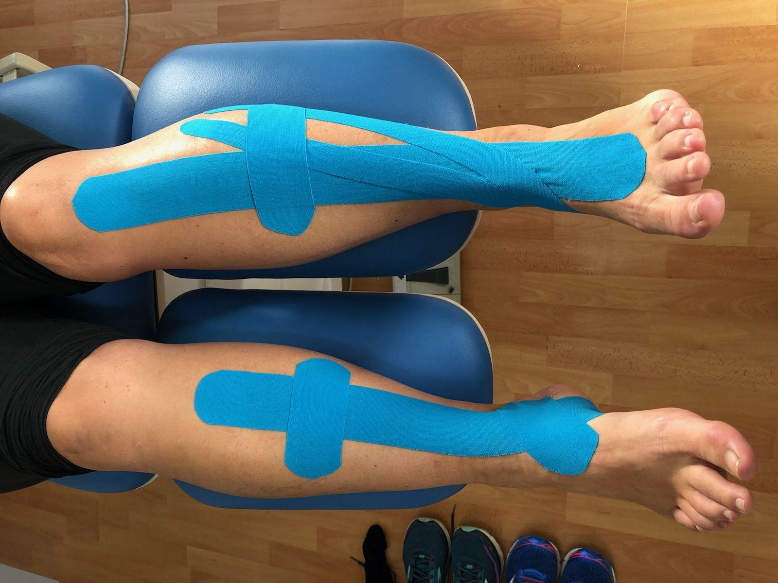 Shin splints taping Shin splints, Shin splint