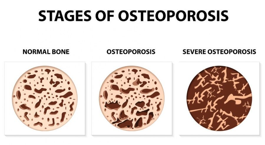 Natural Treatments For Severe Osteoporosis