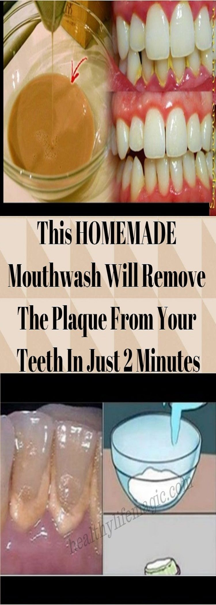 This HOMEMADE Mouthwash Will Remove The Plaque From Your Teeth In