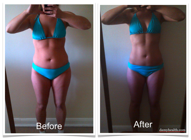 leg fat loss before and after