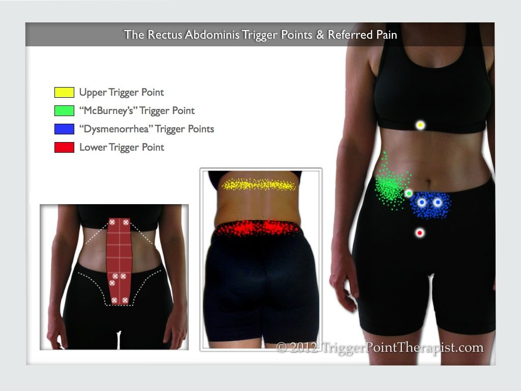 lower back exercises diagram 2016 mazda bt 50 radio wiring a showing the rectus abdominis trigger points and