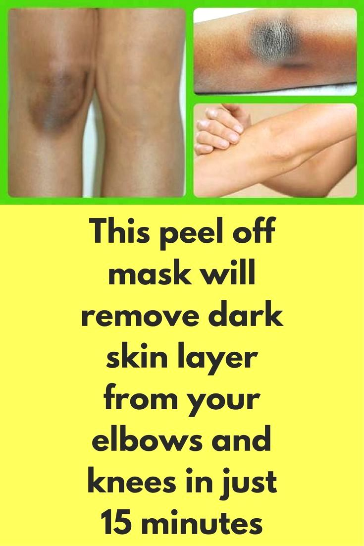 Get rid of dark spots on the neck underarms and between