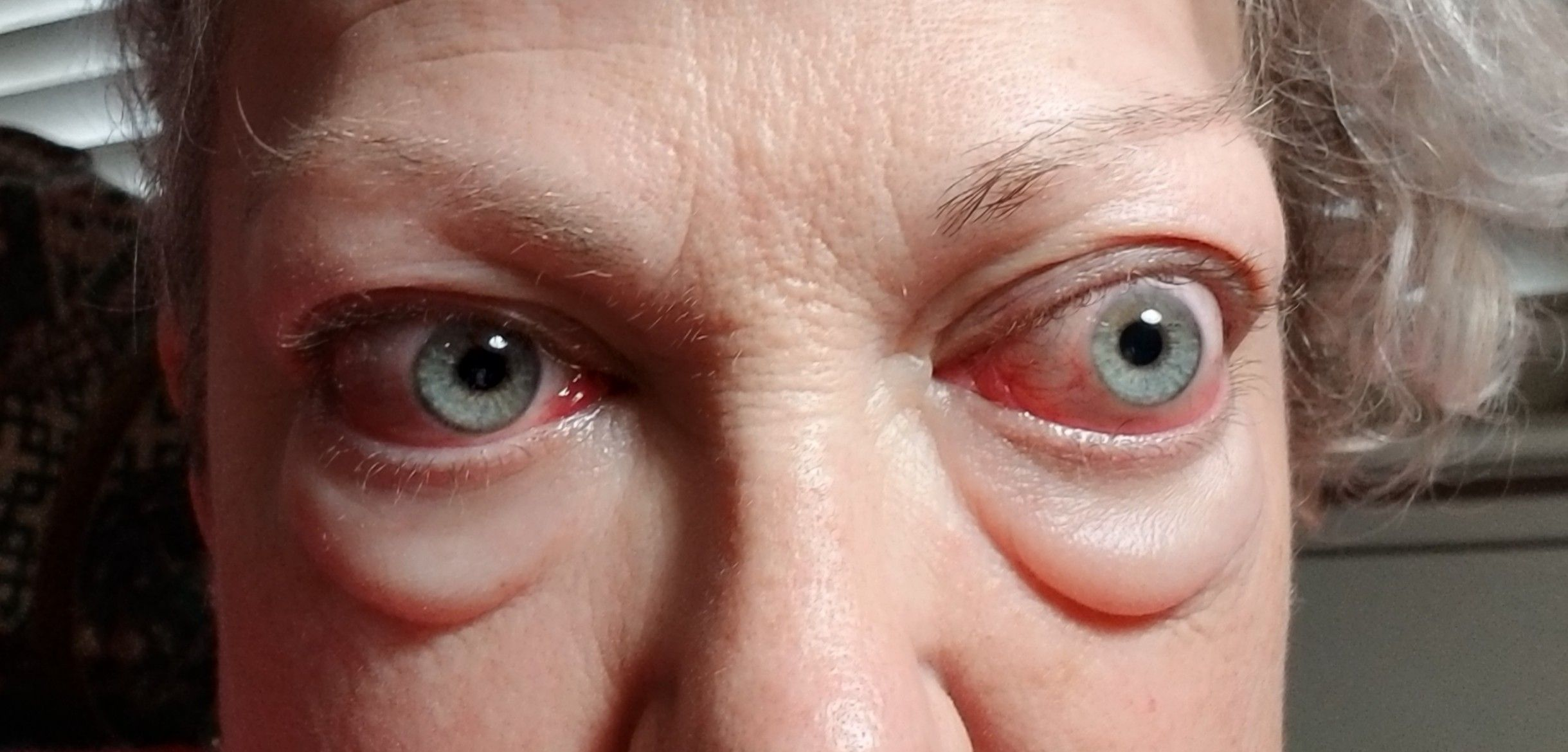 Thyroid Eye Disease Graves Eye Disease Thyroid Eyes Disease